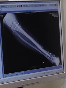 M's leg w hardware